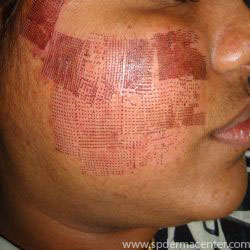 Acne scar corrected by co2 fraxel amp diode pixel laser in 5 treatments