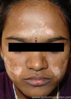 S P Derma Center Phototherapy Treatment Results