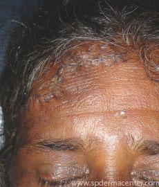 S P Derma Center Surgery Cases
